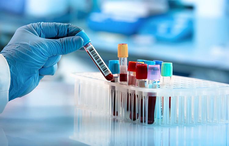Scientist handling blood samples